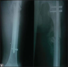 radiograph of left femur at 3 months postop